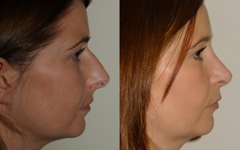 Rhinoplasty Scotland